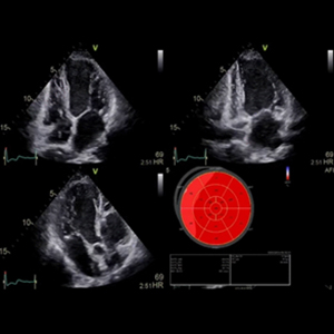 Introduction Training to Myocardial Strain Imaging