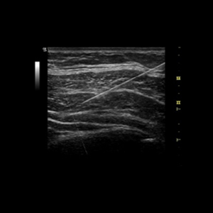 Introduction Training to Scanning Technique and Ultrasound Anatomy of Peripheral Nerve Blocks in Adults